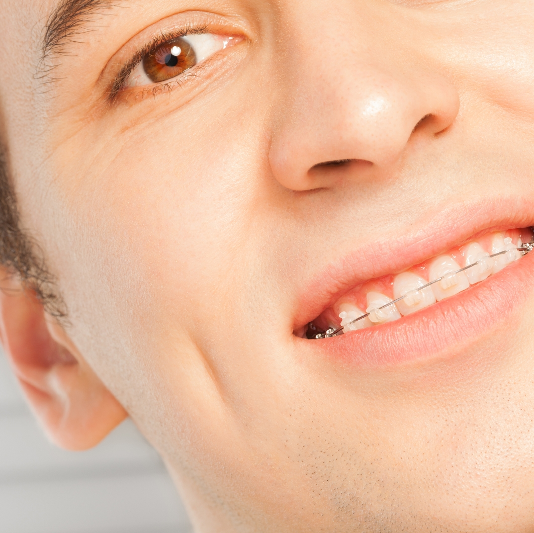 Do Clear Braces Take Longer than Other Teeth Straightening Treatments?