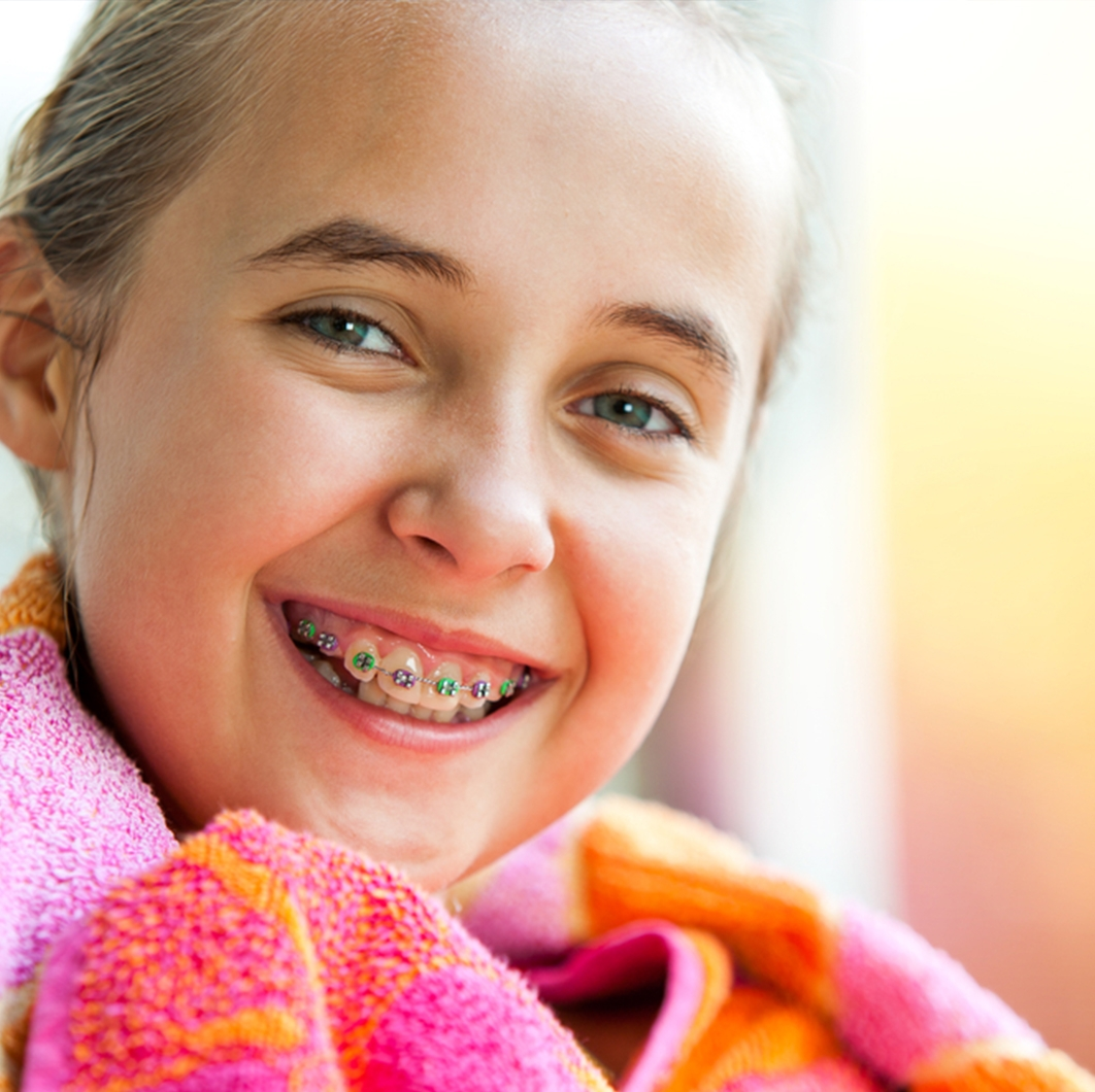 Can You Make Monthly Payments for Braces?